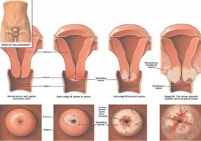 Early Signs of Cervical Cancer-More Information