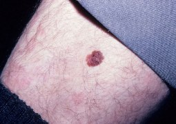 Skin Cancer Mole