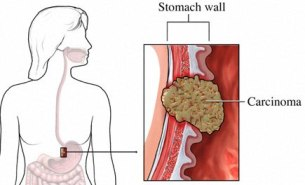 Indigestion Or Pain In Stomach May Lead To Stomach Cancer!