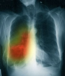 Advanced Lung Cancer