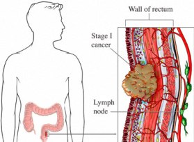 Want More Rectal Cancer Information?