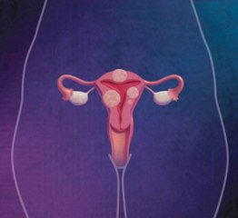 Uterine Cancer is Cancer in the Womb!