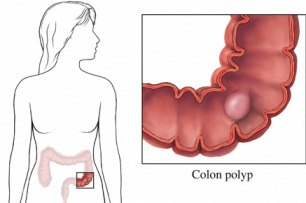Colon Cancer Statistics And Survival Rates!