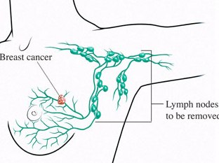 Breast Cancer In Your Family? Are You At Risk?