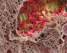 tumor microenvironment of metastasis