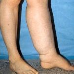 Lymphedema - Post Chemo Consequence