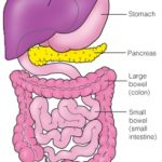 colon screening