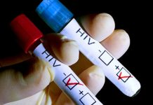Link Between HIV and Cancer Examined by Study