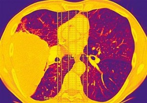 Metastatic Lung Cancer