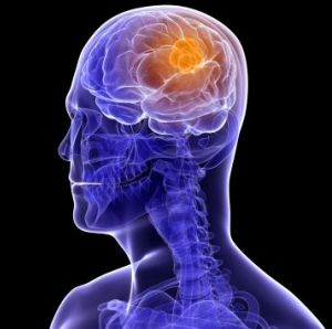 What Causes Brain Tumors
