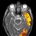 Metastatic Brain Cancer
