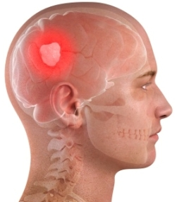 Brain Tumor Side Effects After Surgery