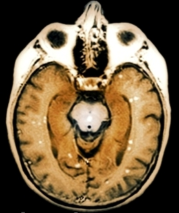 Brain Tumor Signs and Symptoms in Women