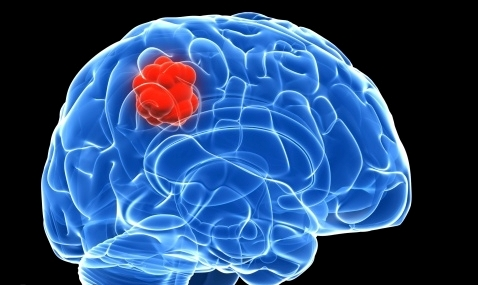 Types of Brain Cancer in Kids