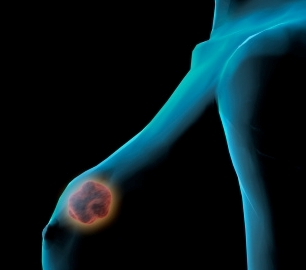 Causes of Breast Cancer Symptoms