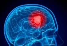 Stages of Brain Cancer Symptoms