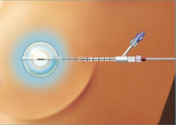 Brachytherapy for Breast Cancer Treatment