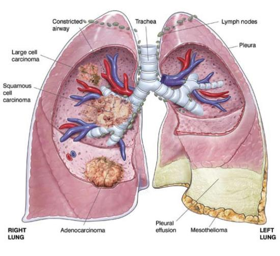 mesothelioma cancer treatments