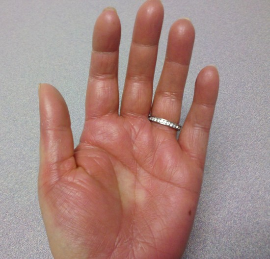hand foot syndrome