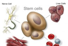 autologous stem cell treatment