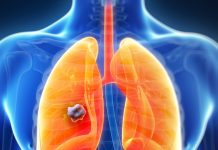 risk factors for small cell lung cancer
