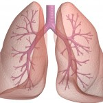 know about pleural effusion in lung cancer