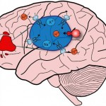 know about the types of brain cancer
