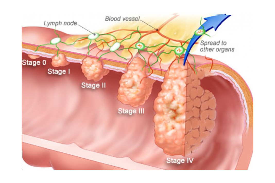 4 Different Stages of Colorectal Cancer