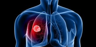 Can Estrogen Cause Lung Cancer?