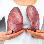 Can Lung Transplant Save From Lung Cancer