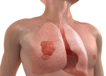 Radiation Therapy For Lung Cancer Side Effects Online Cancer Blog