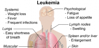 risk of leukemia