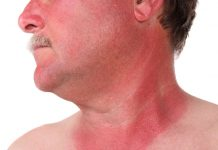 skin cancer myths busted