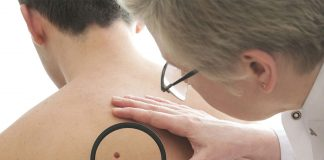 3 Important Things you should know about Melanoma Skin Cancer
