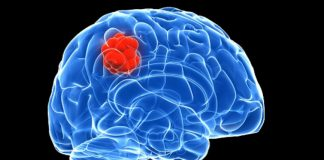 Signs and Signals Indicating Brain Cancer