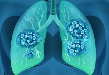 The Survival Rate of Each Lung Cancer Stage